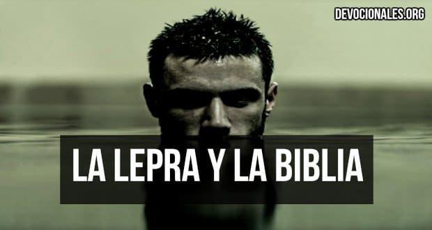 lepra-biblia